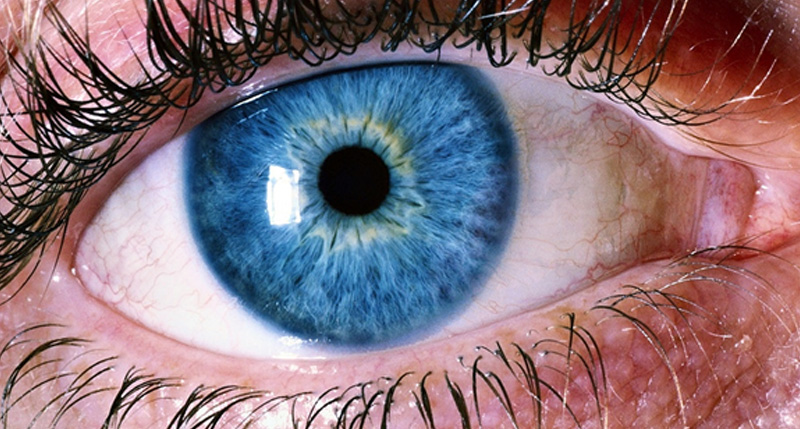 Retinal Detachment: Are You at Risk?